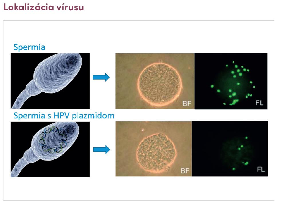 HPV vírus a vplyv na mužskú plodnosť